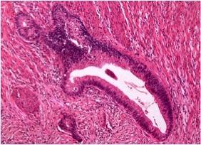 Аденома карцинома кишечника 186